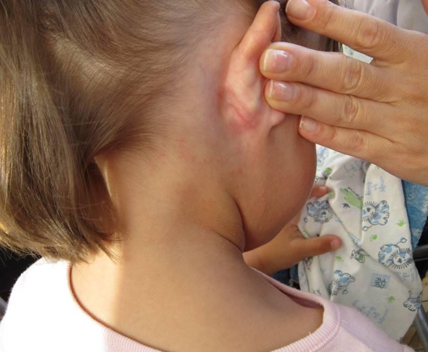 Как сделать так, чтобы исчезла золотуха у детей за ушами: лечение и соблюдение диеты
