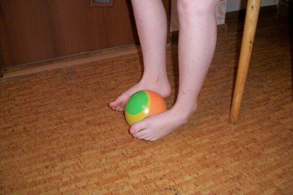 Упражнения при вальгусной деформации стопы у детей (17 фото): лфк при плосковальгусной стопе, гимнастика при вальгусе
