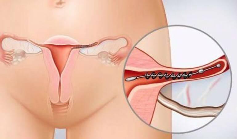 Перевязка маточных труб: плюсы, минусы, шансы забеременеть после стерилизации | информационный портал о здоровье