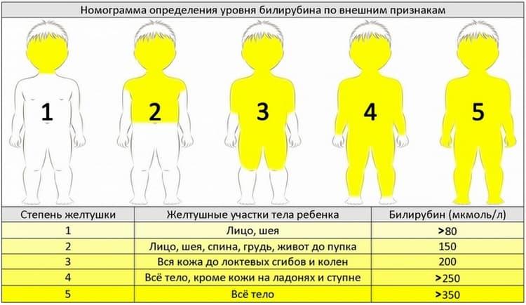 Повышен билирубин у новорожденного: норма билирубина у детей