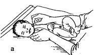 Подмывание новорожденного ребенка. сестринское дело. — медицина. сестринское дело.