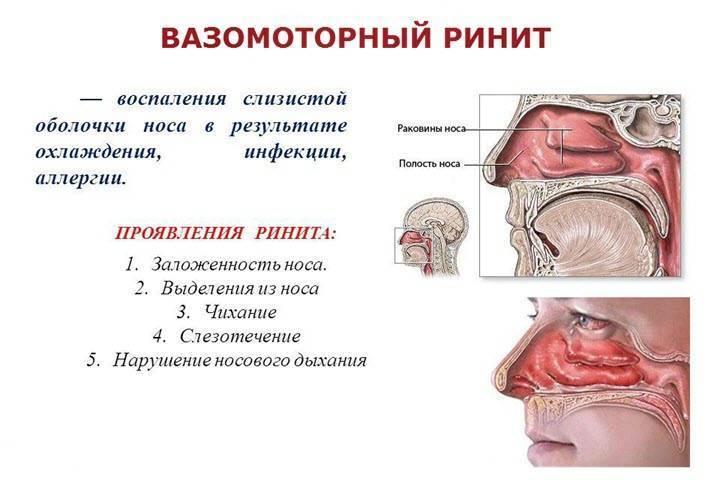 Вазомоторный ринит: симптомы и лечение у детей