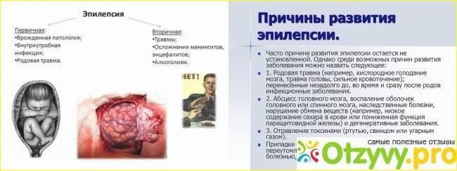 Роландическая эпилепсия: причины заболевания, симптомы и признаки, методы лечения, особенности проявления у детей
