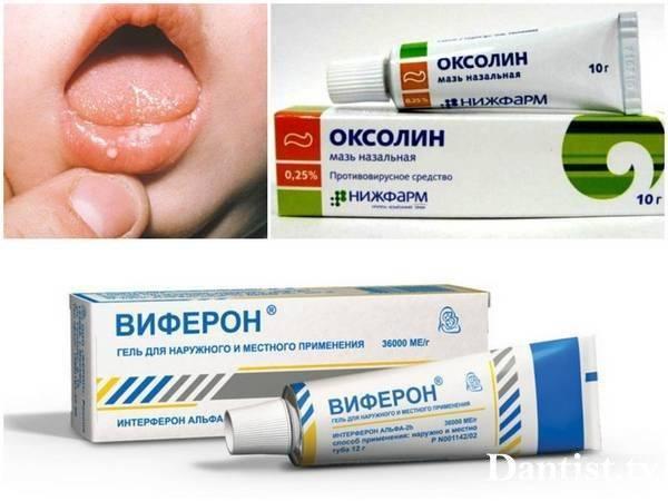 Вирусный стоматит у ребенка 2 года лечение чем мазать рот - все о детях