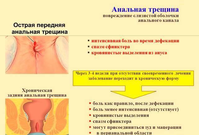 Боль при месячных отдает в прямую кишку: причины и лечение