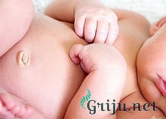 Паховая грыжа у ребенка. фото 1, 2, 3 года, 5 лет. лечение без операции народными средствами, операция