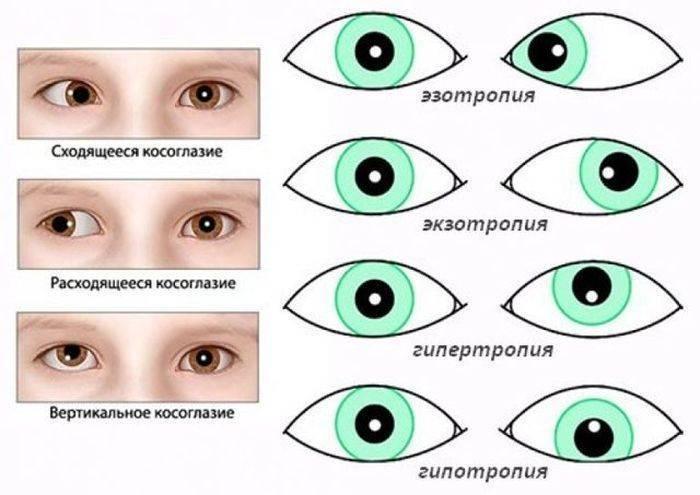 Почему косят глазки у новорождённых