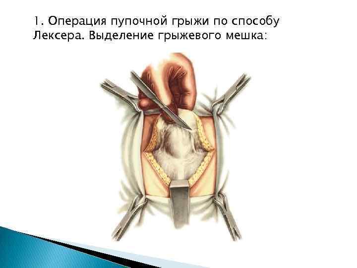 Пупочная грыжа у детей: фото, лечение без операции в возрасте 1-7 лет   заболевания   vpolozhenii.com