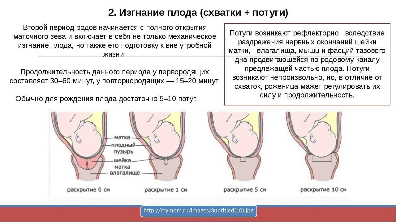 На что похожи родовые схватки - беременность