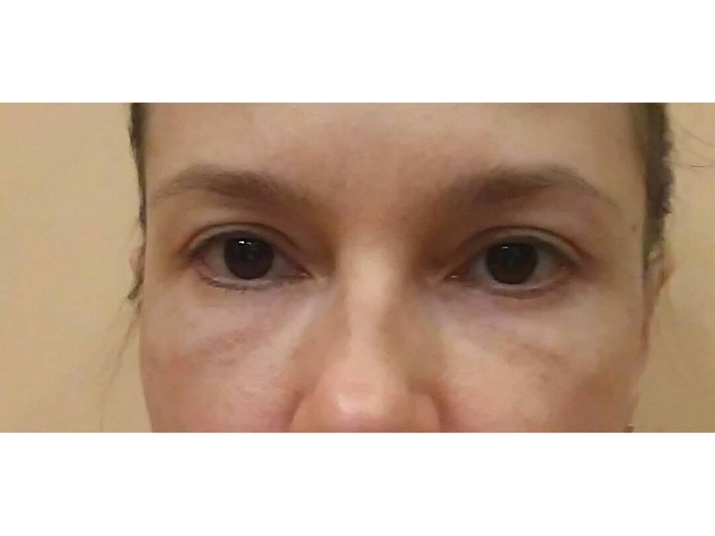 Мешки под глазами у ребенка: лечения у подростков и детей, советы доктора комаровского