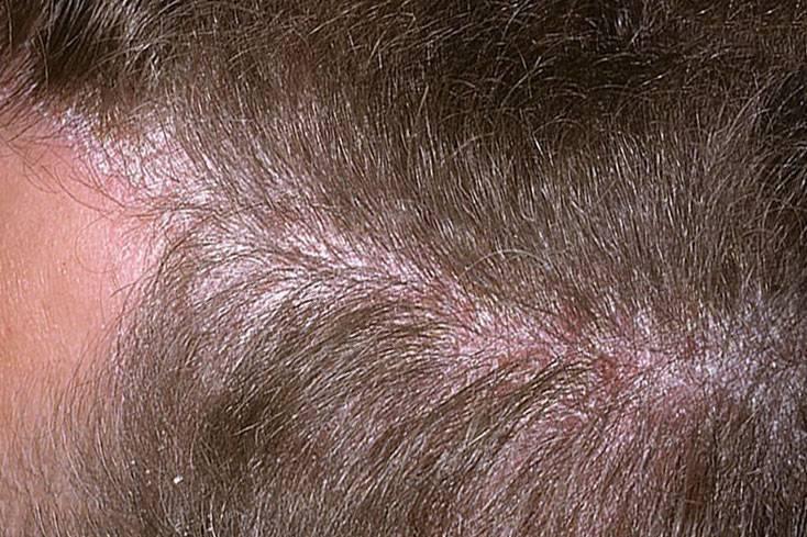 Себорея кожи головы у ребенка: лечение себорейного дерматита