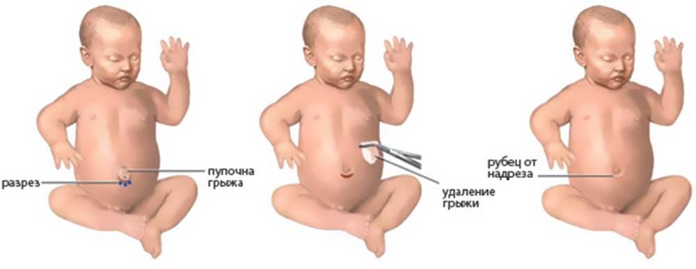 Пупочная грыжа у детей: симптомы и лечение, операция в 2 года по удалению грыжи, бандаж от грыжи на животе