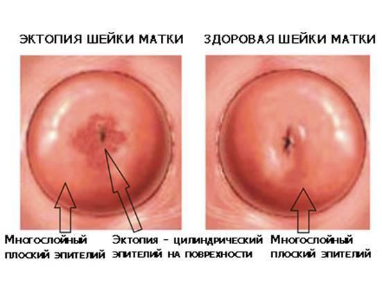 Таблетки транексам при месячных и маточных кровотечениях: инструкция, показания к применению, противопоказания