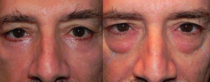 Причины появлении мешков под глазами у ребенка