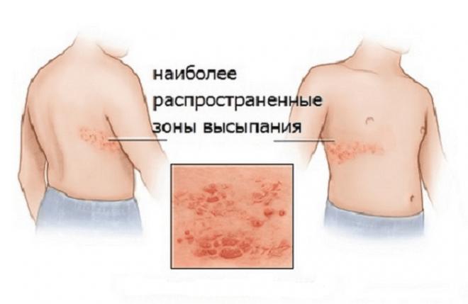 Вирусный герпес у детей - как проявляется и лечится