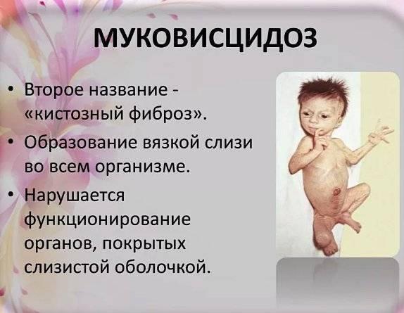 Муковисцидоз - симптомы у детей и взрослых, лечение и препараты | здрав-лаб