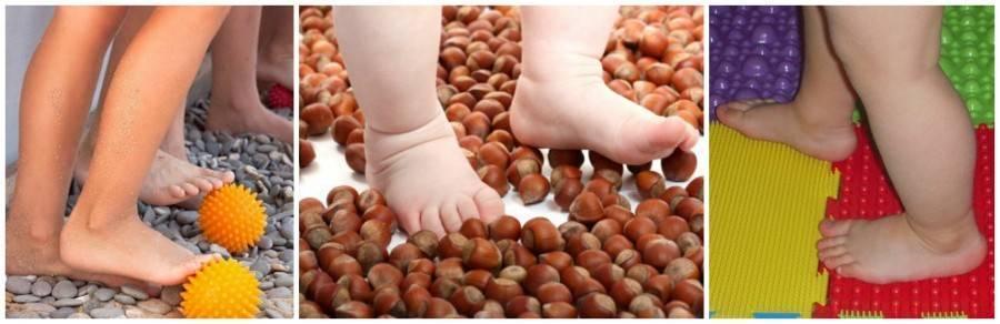 Плоскостопие у детей — лечение в домашних условиях. как лечить плоскостопие у детей. причины, симптомы, диагностика, профилактика и методы лечения