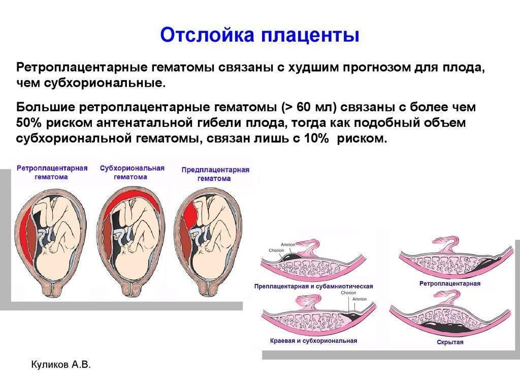 Причины и последствия деформации плодного яйца