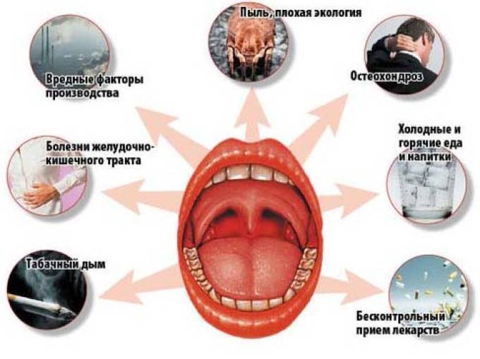 Вирусная ангина у детей: симптомы и лечение, фото горла при тонзиллите