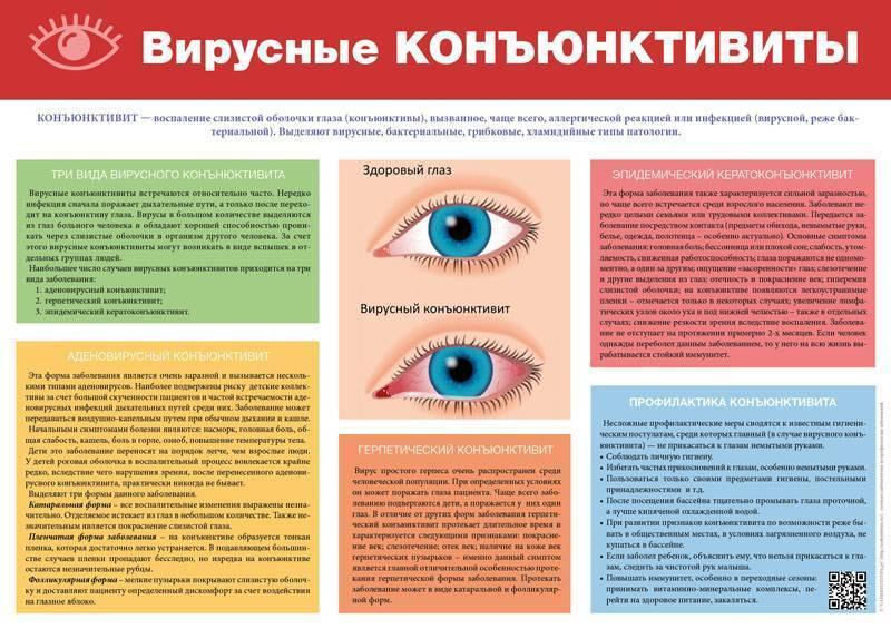 Вирусный конъюнктивит у детей: симптомы и лечение oculistic.ru вирусный конъюнктивит у детей: симптомы и лечение
