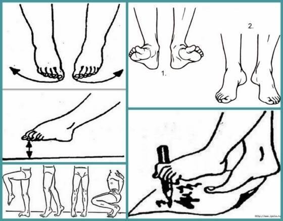 Спорт при вальгусной деформации коленных суставов