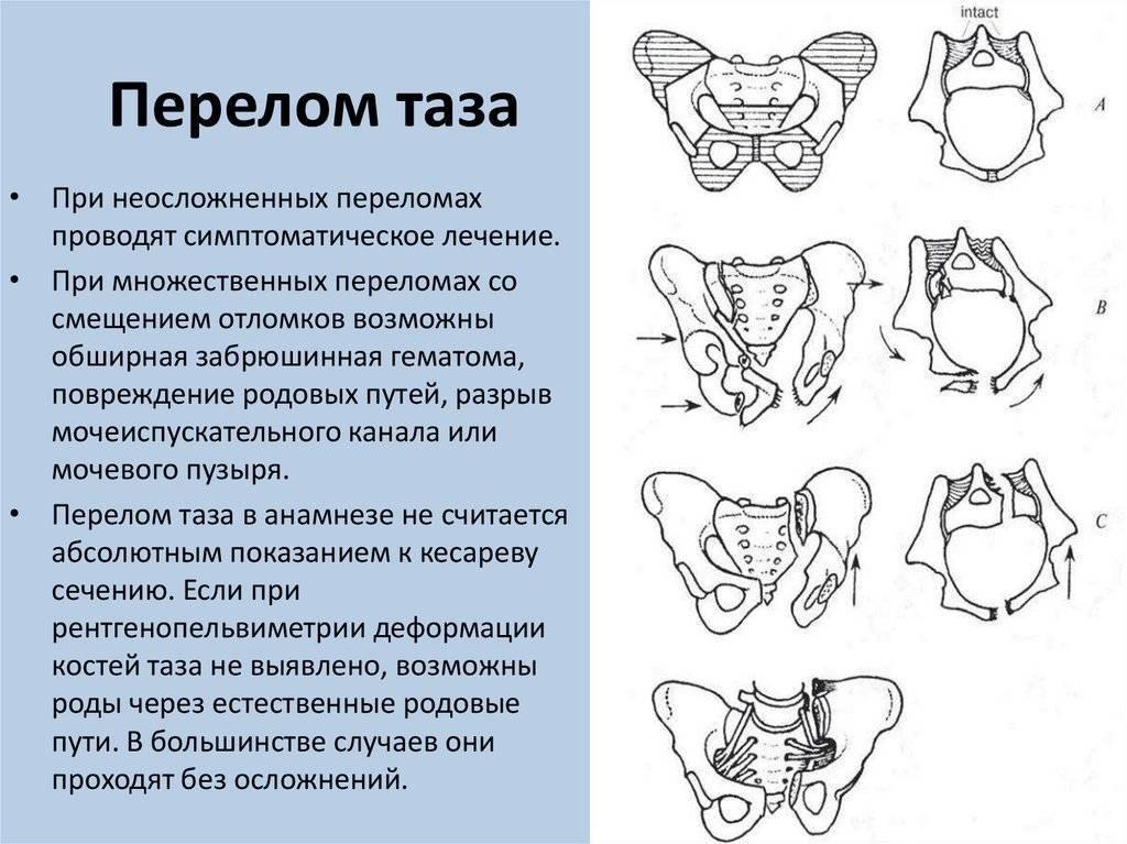 Как расходятся кости таза при беременности когда будут роды