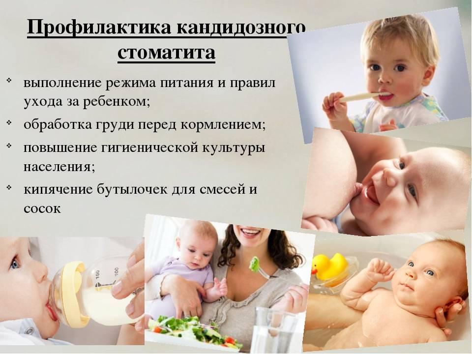 Чем кормить ребенка при стоматите - мед-инфо