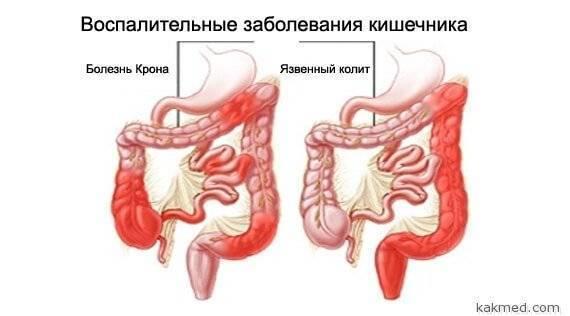 Все о кишечном колите грудного ребенка: определение симптомов, способы лечения