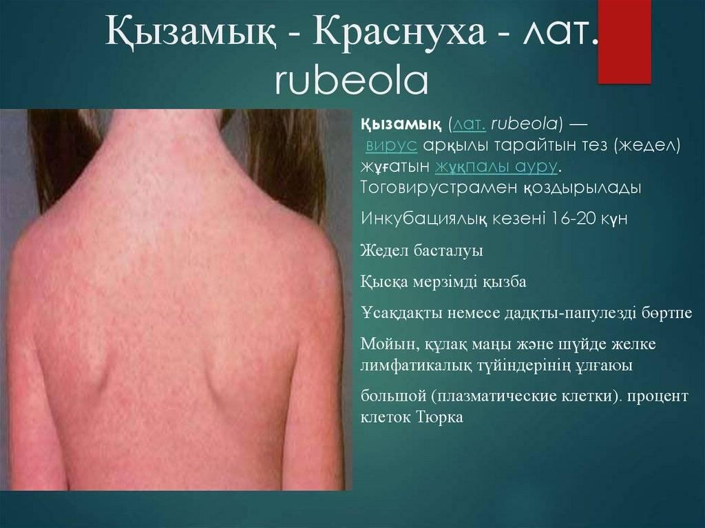 Краснуха у детей: симптомы с фото, лечение и профилактика