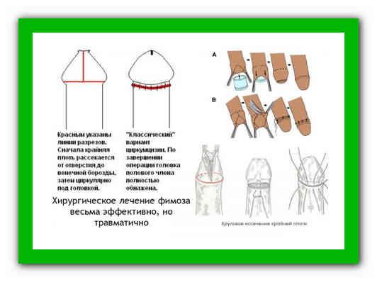 Е. комаровский: фимоз у мальчиков, лечение физиологической формы в домашних условиях