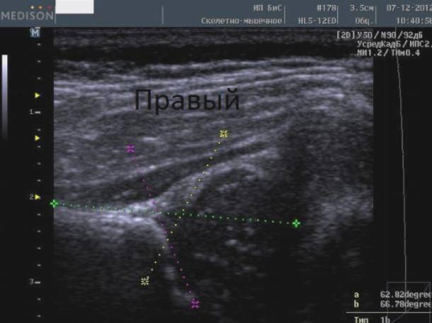 Видно ли на узи дисплазию тазобедренных суставов у грудничков
