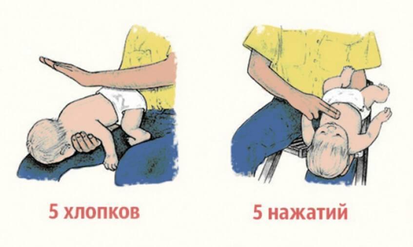 Что делать, если ребенок подавился и задыхается: первая помощь