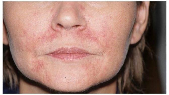 Дерматит на лице лечение у ребенка - лечим сами