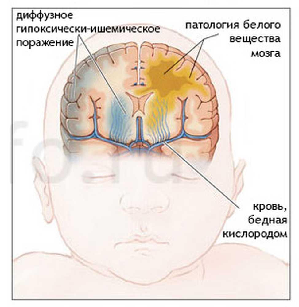 Церебральная ишемия у новорожденного: степень, лечение, последствия