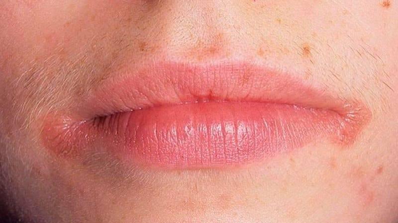 Заеды в уголках рта: что такое ангулит или хейлит - много зубов