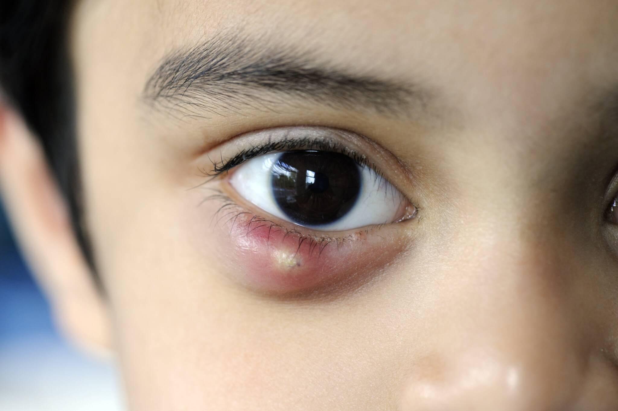 Ячмень у собаки на глазу: что делать, причины, как лечить