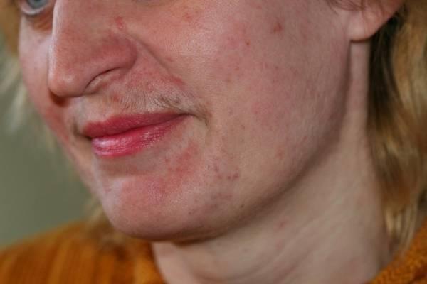 Периоральный дерматит у ребенка: причины и способы лечения