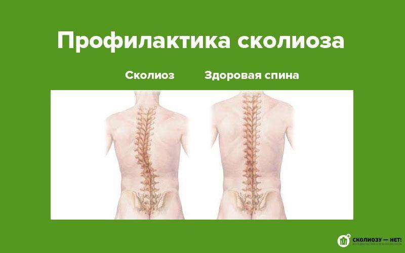 Сколиоз грудного отдела позвоночника может привести к ужасным последствиям, поэтому важно вовремя начать лечение. его симптомы может выявить доктор и рентген. также может помочь лфк.
