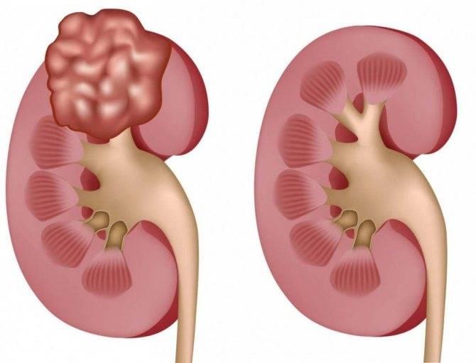 Гипоплазия почки: причины и лечение