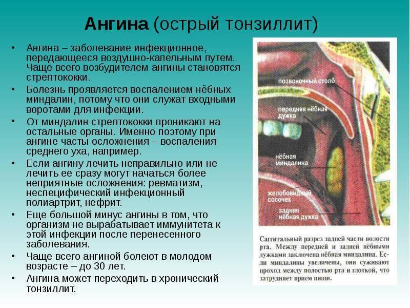 Осложнения после ангины: чем она опасна, последствия, можно ли умереть от нее