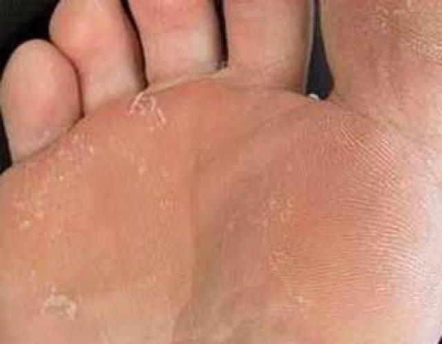Онихомикоз (грибок ногтей). причины, симптомы, признаки, диагностика и лечение патологии :: polismed.com