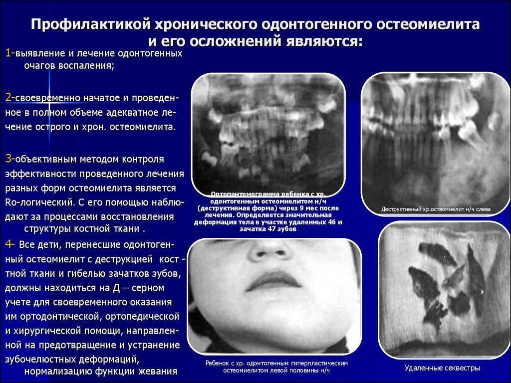 Острый и хронический остеомиелит у детей