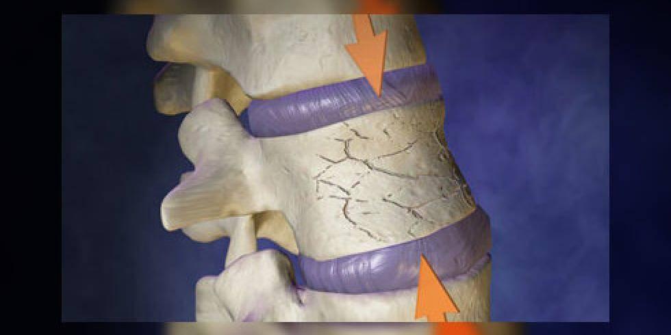 Компрессионный перелом позвоночника у детей, взрослых: симптомы, лечение и реабилитация