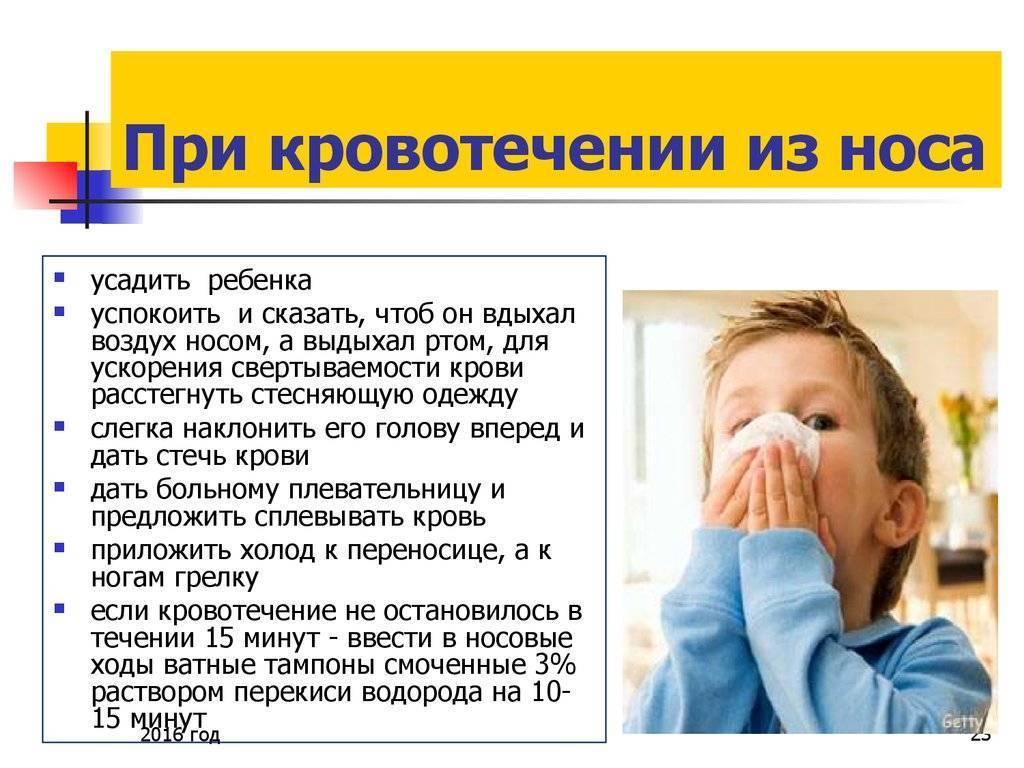 Как остановить сильное носовое кровотечение в домашних условиях у ребенка и взрослого