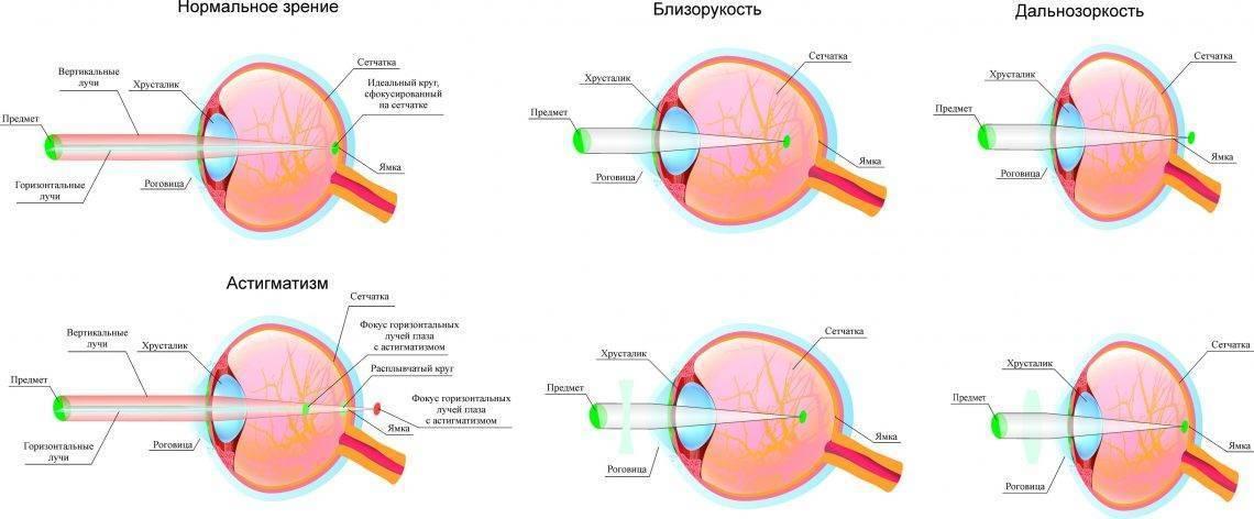 Гиперметропия средней степени: причины развития, признаки и лечение