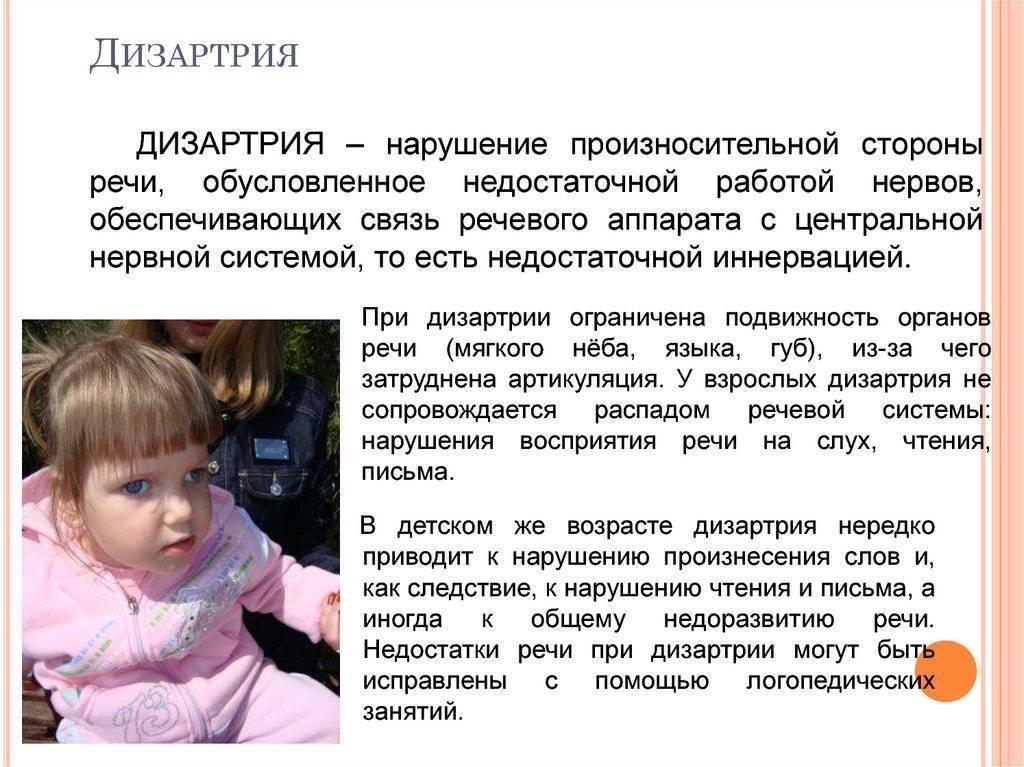 Дизартрия у детей: формы, характеристика ребенка, коррекция : причины, симптомы, обследование детей, лечение | компетентно о здоровье на ilive