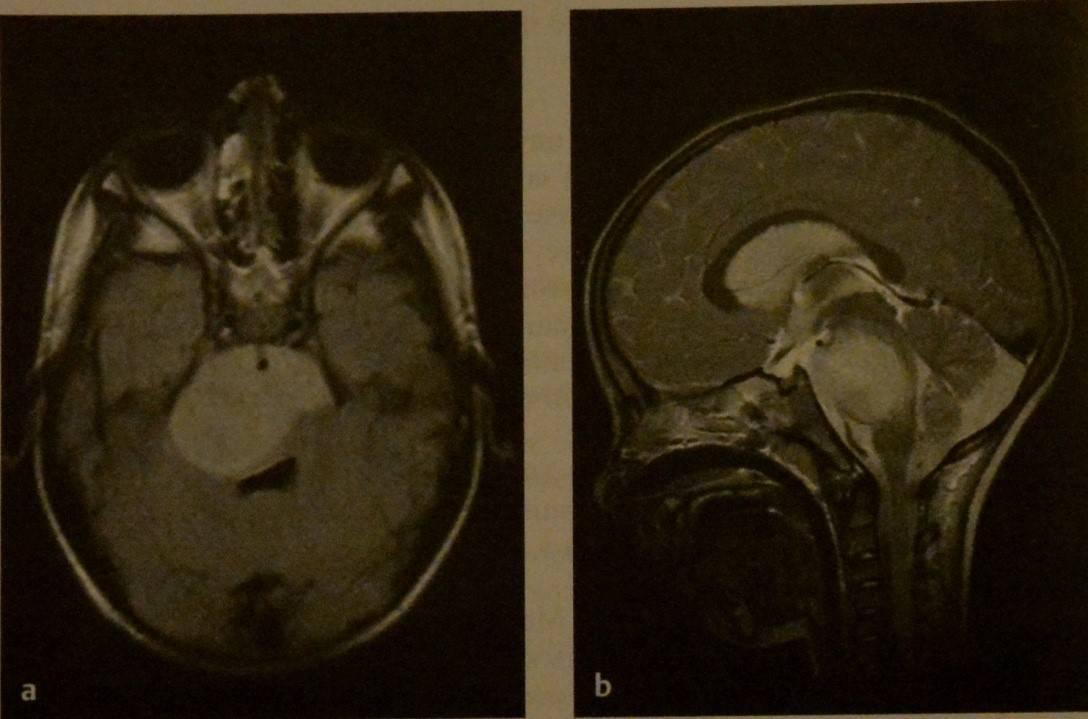 Симптомы опухоли мозга у ребенка 6 лет. опухоль головного мозга у детей: симптомы и лечение