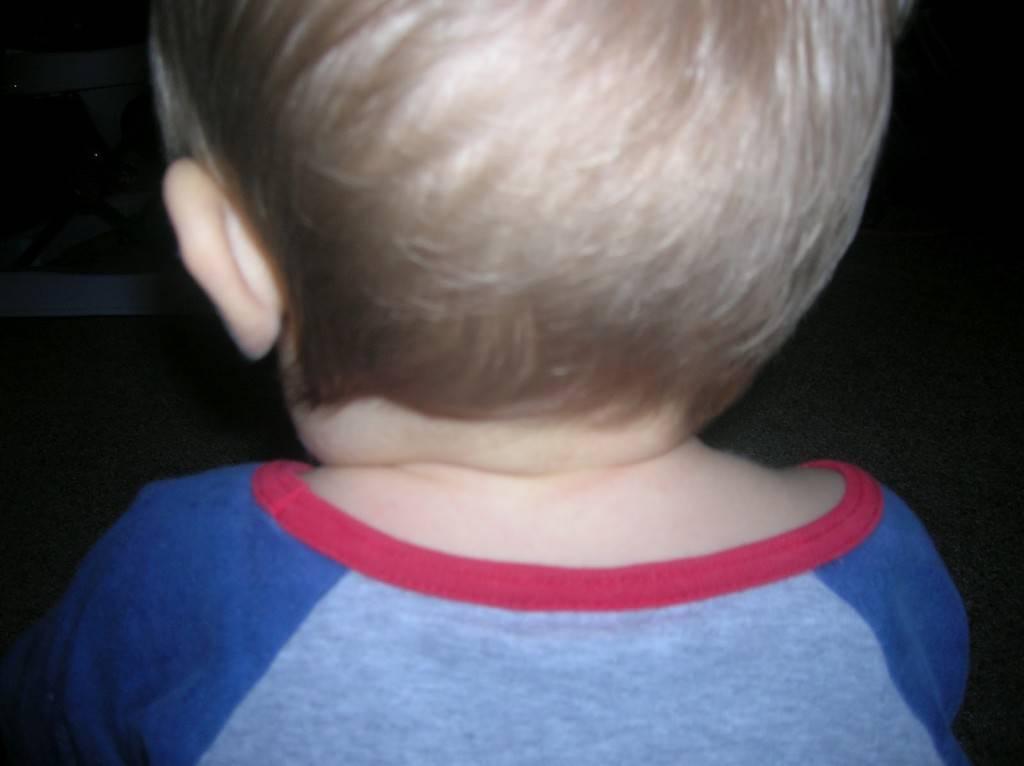 У ребенка увеличены лимфоузлы на затылке: причины воспаления, расположение на голове с фото
