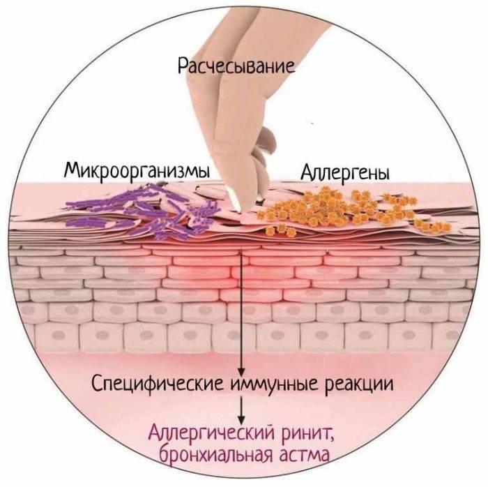 Борьба с хронической аллергией: атопический дерматит у детей