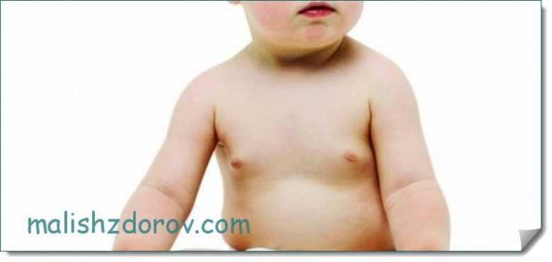 Причины нагрубания молочных желез у новорожденных детей